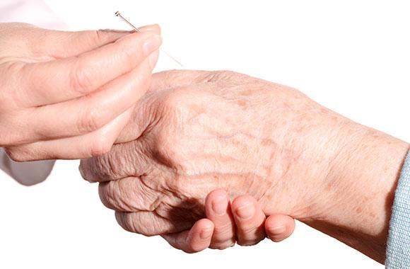 Akupunktur an der Hand eines älteren Menschen